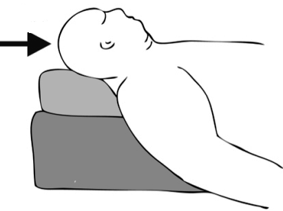 Анестезия при ожирении