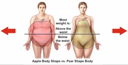 Варианты ожирения