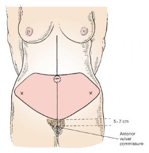 анестезия при абдоминопластике