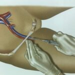 пункция бедренной вены